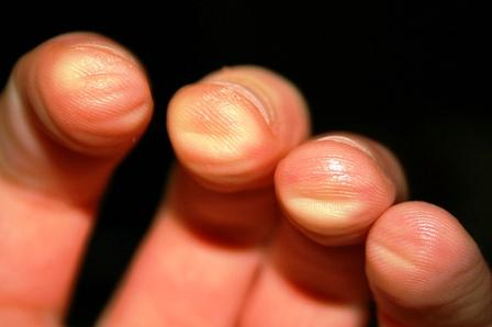 guitar-fingers-ouch